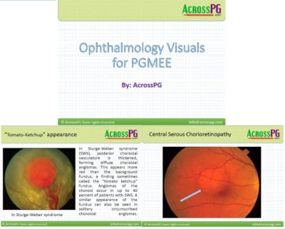 ophthalmology Visuals
