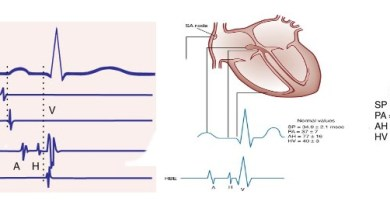 HIS Bundle electrocardiogram