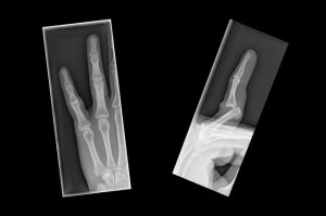 set-finger-bone