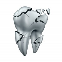 tooth-fracture-drawing-canstockphoto26445718-200x200