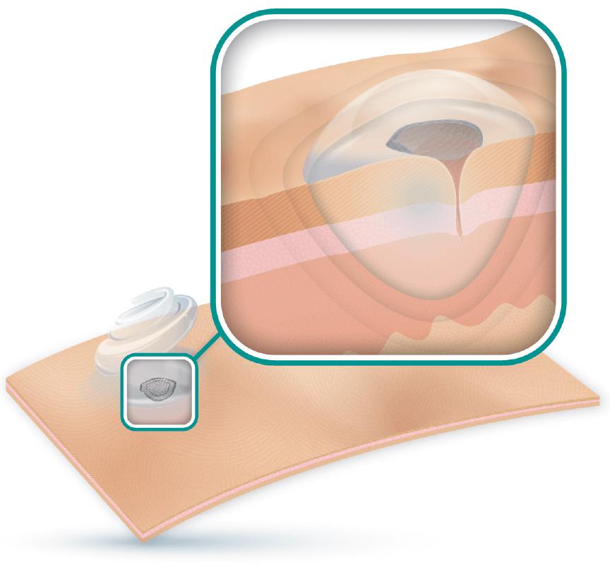 ActivHeal Hydrogel Product Diagram