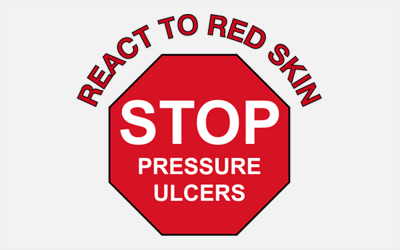 Stop the pressure! A simplified Guide to Pressure Ulcer Prevention and Pressure Ulcer Management.