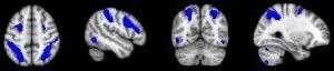 Red dorsal de la atención visuo-espacial