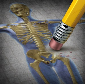 Acupuncture for Osteoporosis