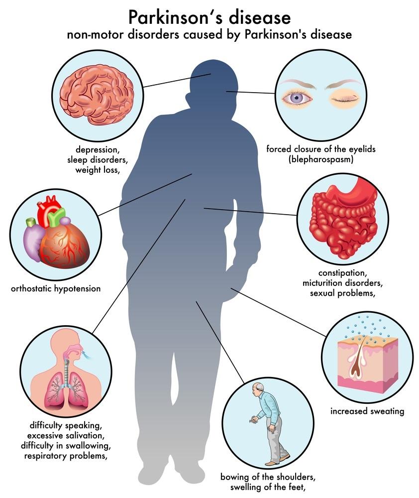 Parkinsons Disease Symptoms and Diagnosis
