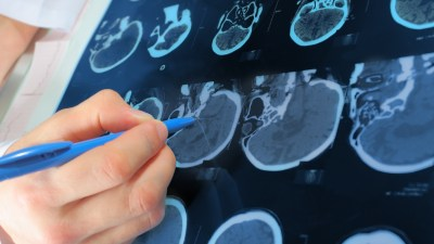 Brain scans show that you can improve your brain.