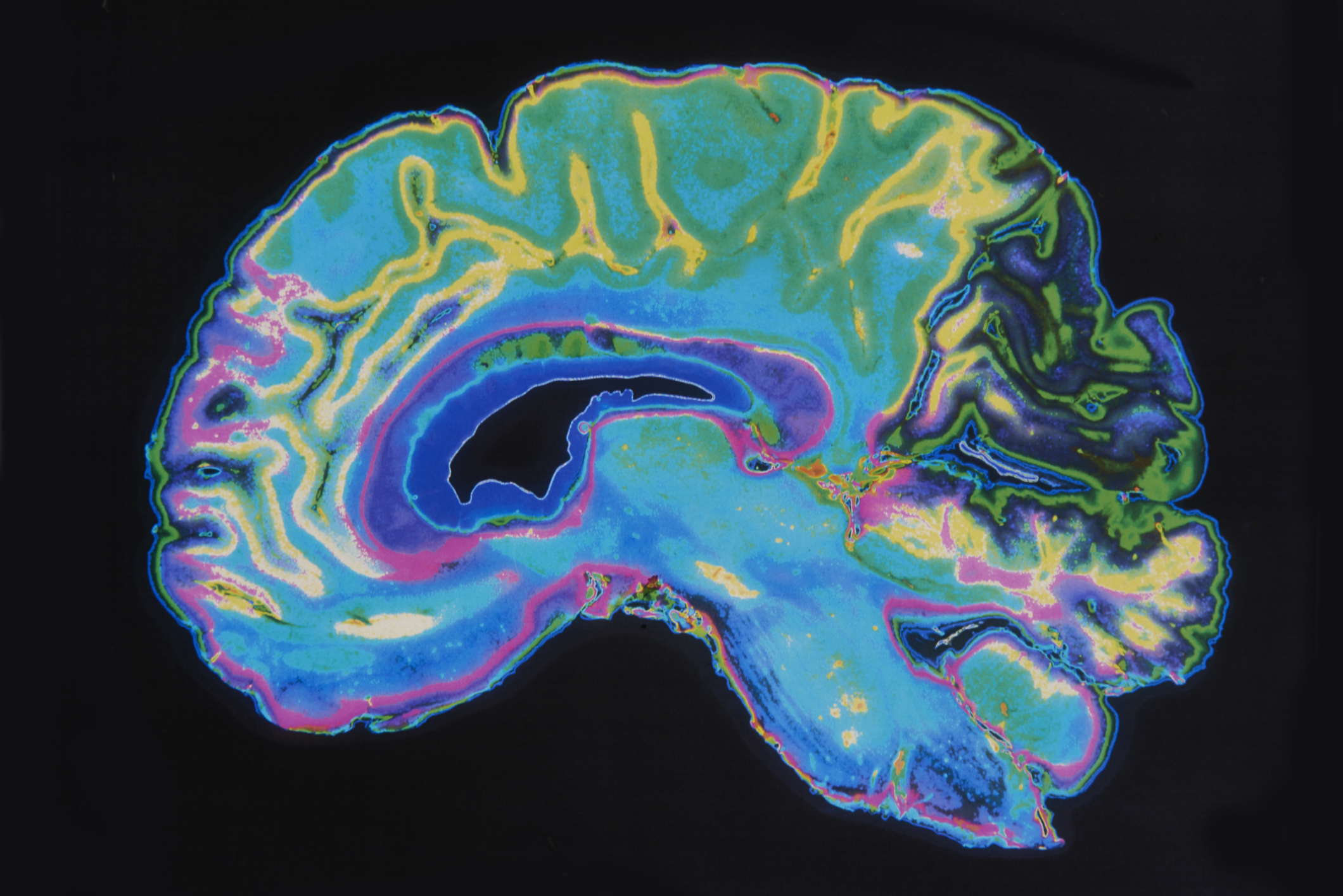 How Does Brain Imaging Work Dr Amen S Adhd Spect Scans