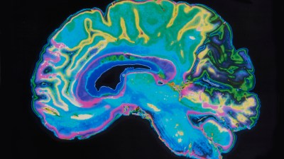 A depiction of an ADHD brain image and the new discoveries in that area of research.