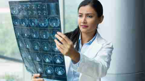 A radiologist reads brain imaging results.