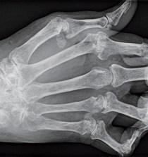 BRASIL. Un test para planificar la terapia  contra la artritis reumatoide 4