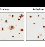 CHILE. Un compuesto derivado de la nicotina podría prevenir el progreso del alzhéimer 7