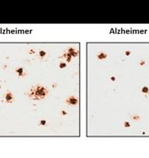 CHILE. Un compuesto derivado de la nicotina podría prevenir el progreso del alzhéimer 4