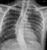 Radiografía mejorada con la nueva herramienta