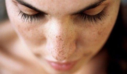 Dieta contra el acné