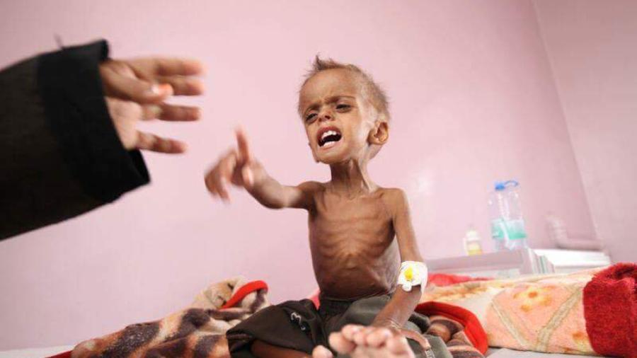 فتك بها الجوع.. جيل كامل من أطفال اليمن يواجه خطر القتل