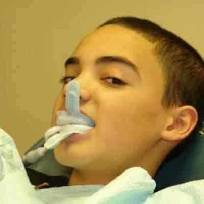dental-sealants-and-flouride-treatments-1 copy