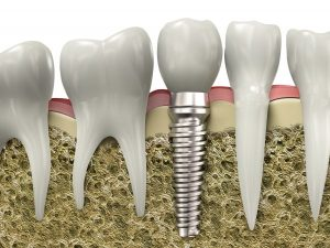 Dental Implants in Huntley and Crystal Lake