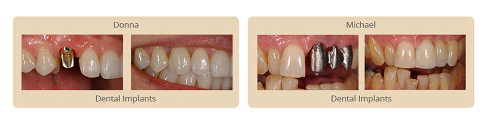 Dental Implants in Algonquin
