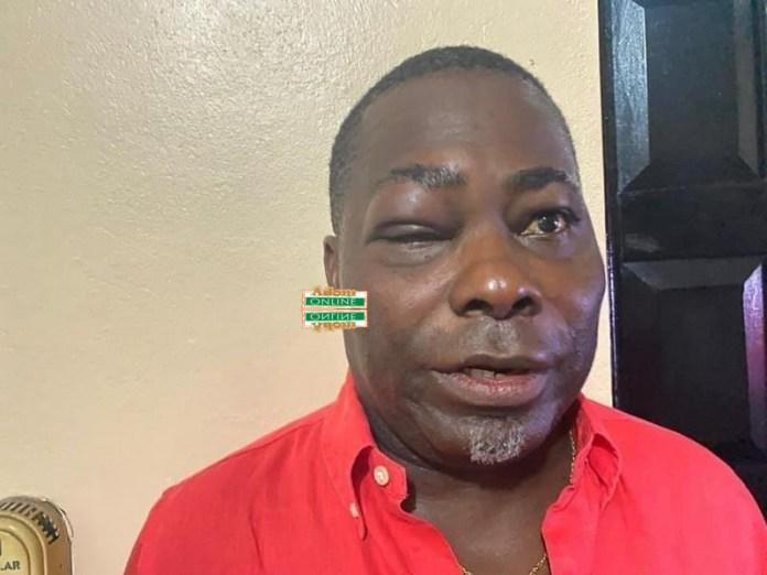 Charles Bissue badly hurt