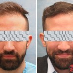 Best Hair Transplant Clinic Delhi Before after results