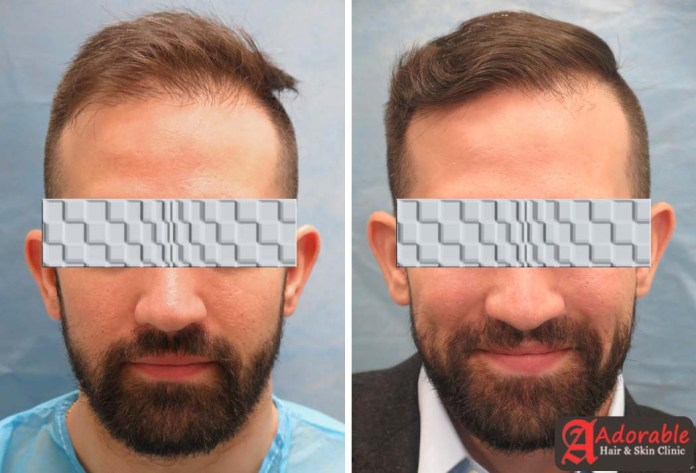Best-Hair-Transplant-Clinic-Delhi-Before-after-results