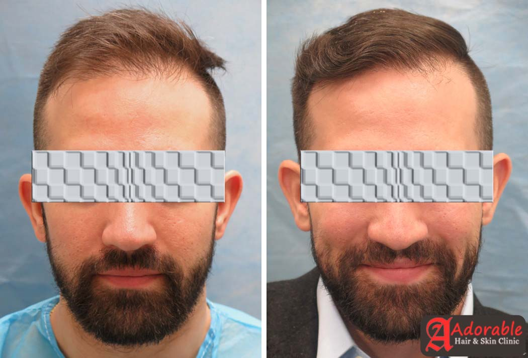 Best Hair Transplant Clinic In Delhi For Male And Female