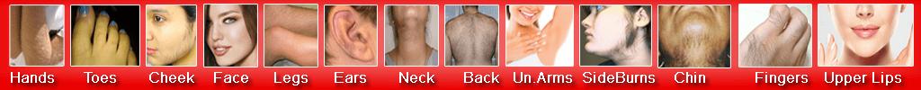 best-laser-hair-removal-in-delhi