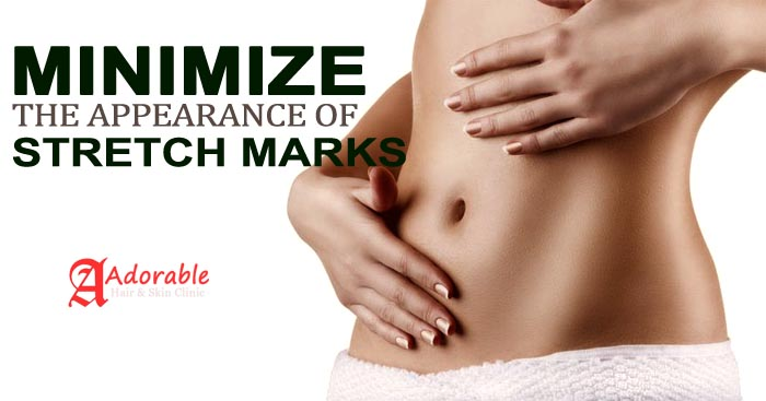 Stretch mark Removal Clinic in Delhi