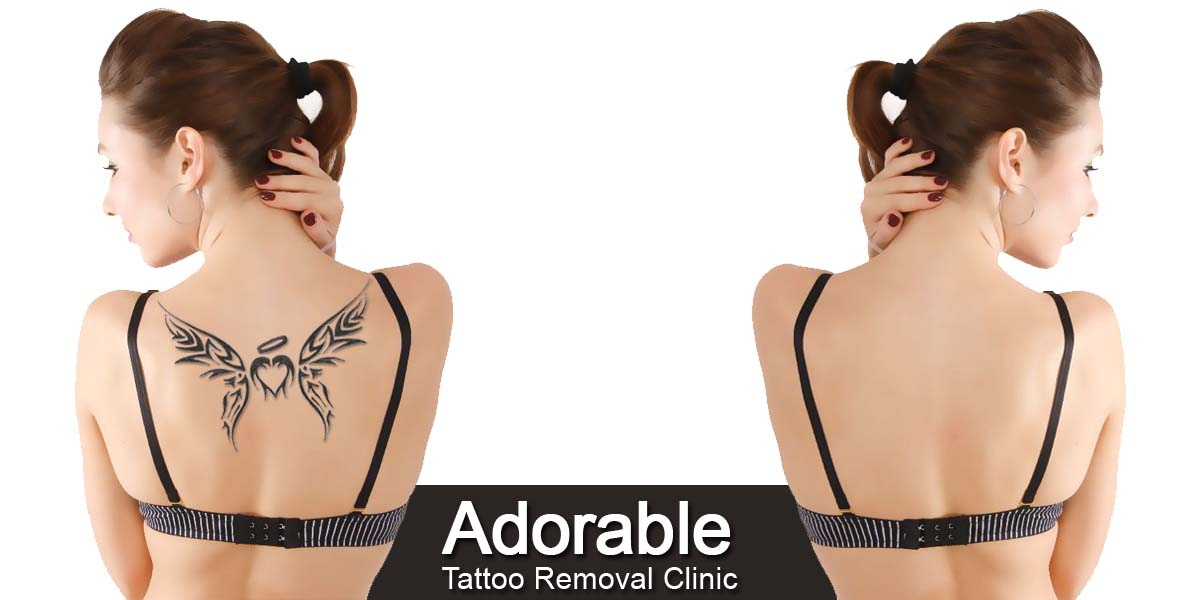 Best Tattoo removal clinic in delhi cost