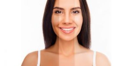 Laser skin whitening in Delhi, Procedure Result, and Recovery