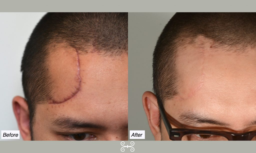 Scar Removal In Delhi, Process, Guidelines, Recovery, Result