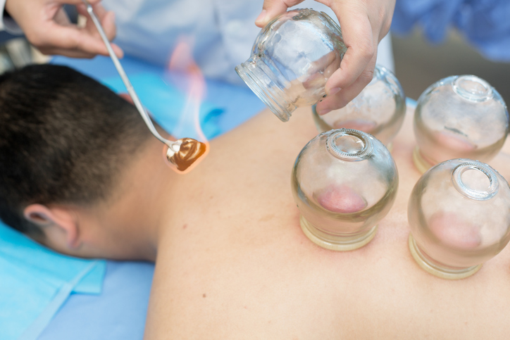 Cupping Therapy In Delhi, Procedure, Pros, and Cons