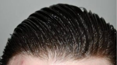 Oily Hair Treatment In Delhi, Procedure, Effects, Advantages