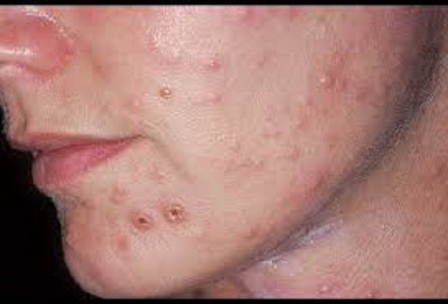 Facial fungal infections