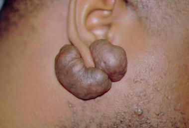 Keloid Scar, Symptoms, Causes, And Treatments