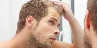 Hair Loss Treatment Question and Answer, FAQ