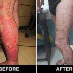 Psoriasis Treatment in Delhi