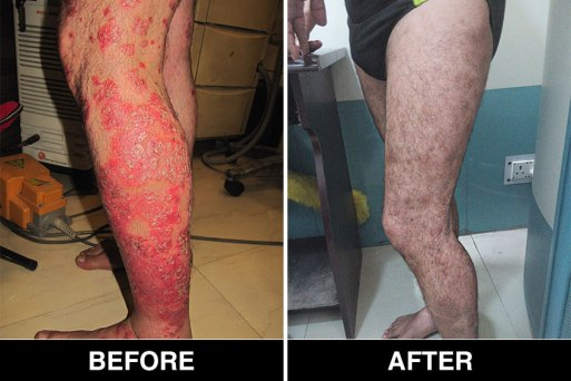 Psoriasis Treatment in Delhi