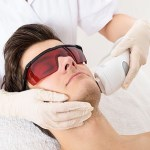 Hair Removal Laser Technique, Question and Answer