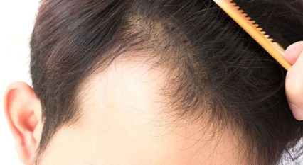Mesotherapy and PRP Therapy for Hair Fall Treatment in Delhi