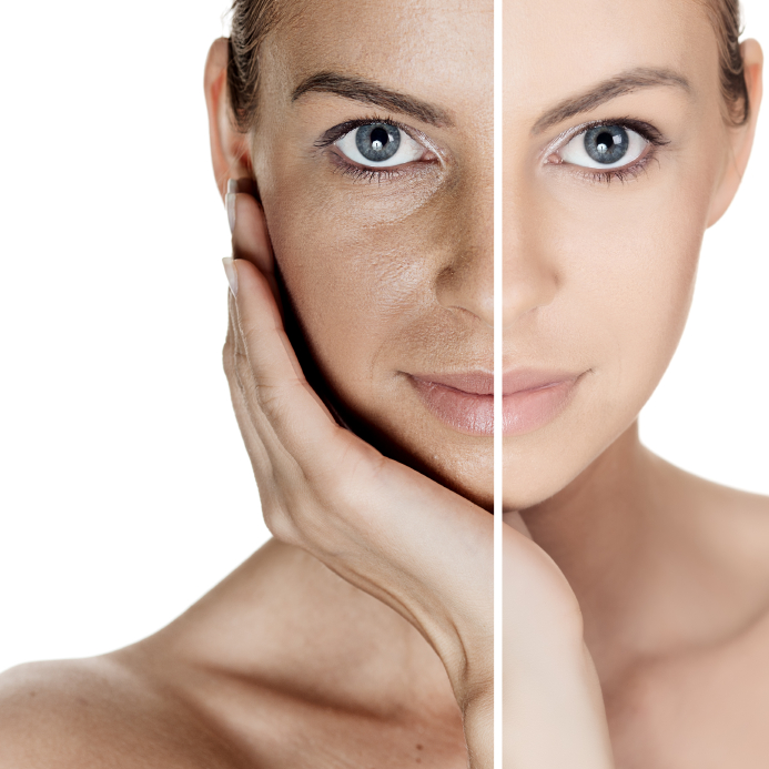 Laser Skin Toning Treatment, Process, And Benefits
