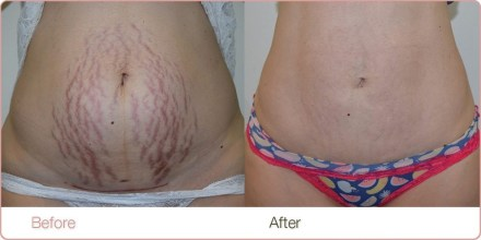 Laser Stretch Marks Removal Best Treatment