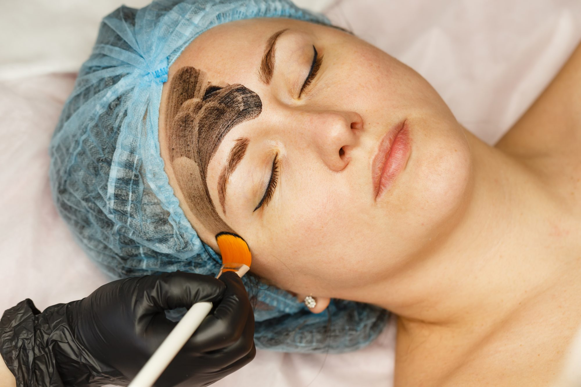 Carbon Laser Facial Procedure And Cost