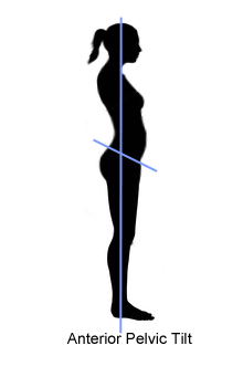 Anterior Pelvic Tilt  - an incorrect pelvis placement for ballet
