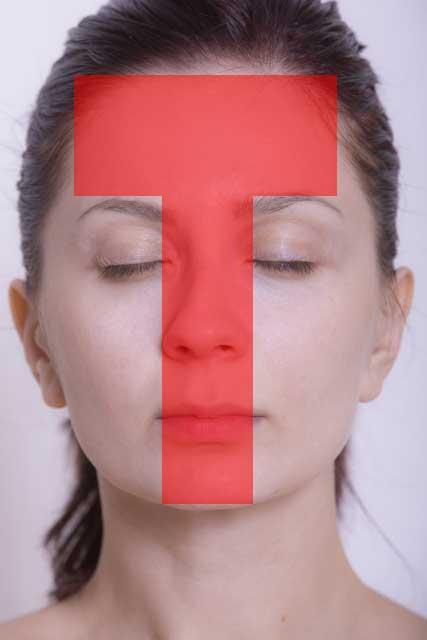 Tゾーンは皮脂腺の分布の多い場所