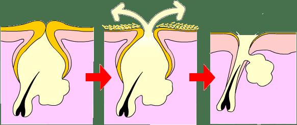 ピーリングで代謝が高まると毛穴の出口の角質が取り除かれてニキビが治る