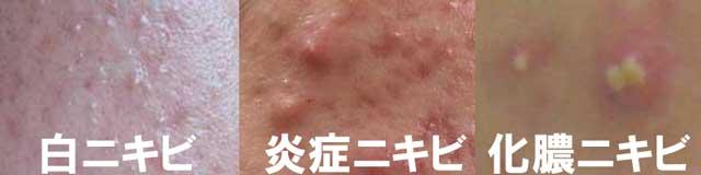 白ニキビ炎症ニキビ・化膿ニキビ