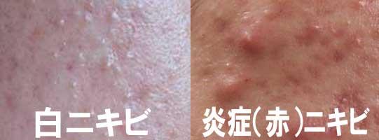 白ニキビと炎症(赤)ニキビ