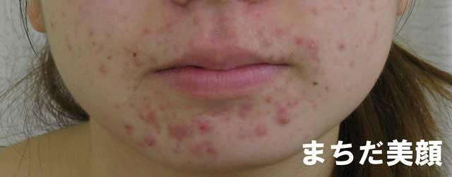 口の下のあごにできるニキビは便秘による皮脂分泌増加が原因の可能性