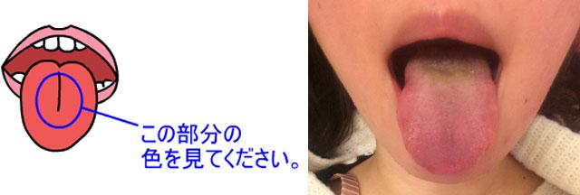 舌の表の状態を撮影してファイル添付でお送りください